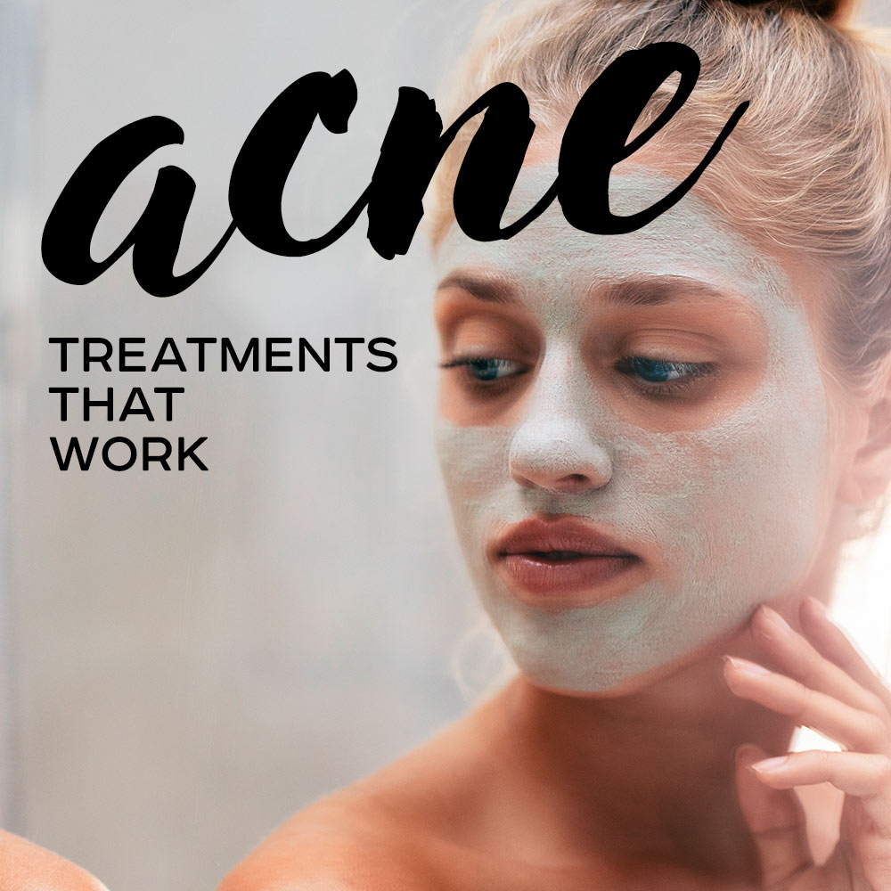 The Truth About Acne and the Acne Treatments to Help You