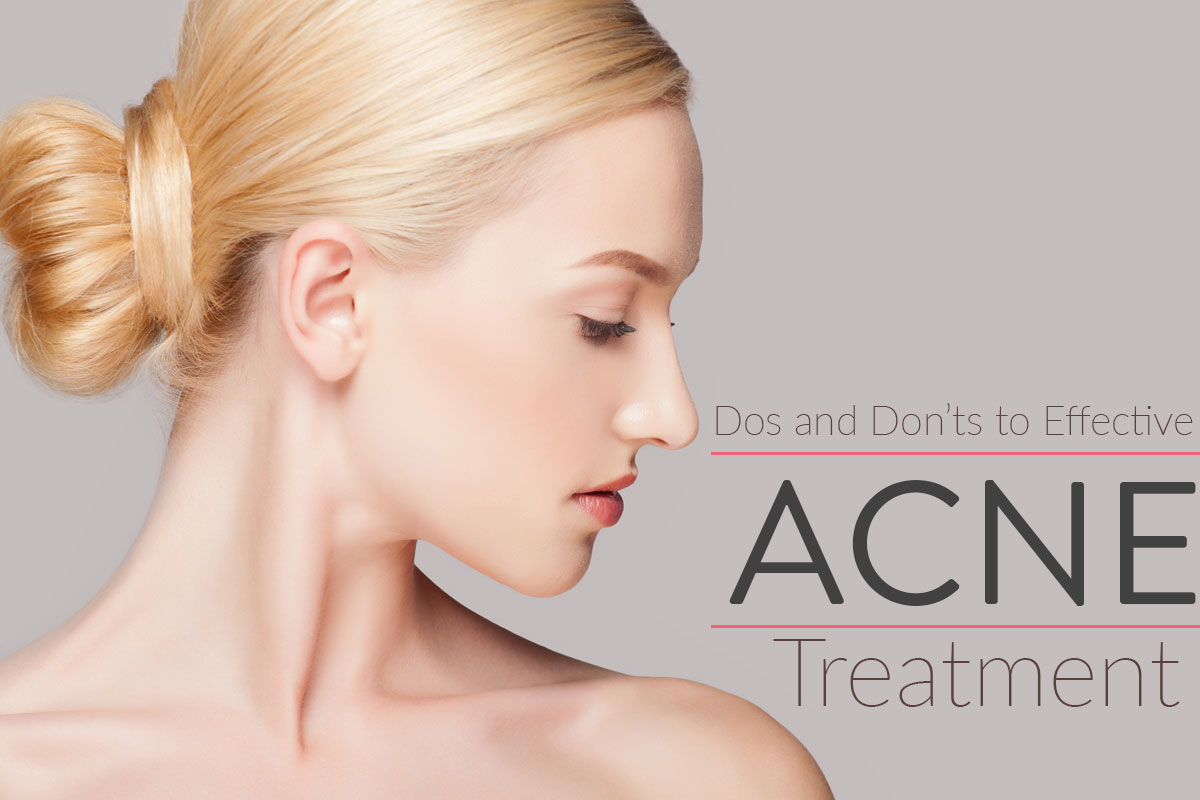 Rules to Effective Acne Treatment