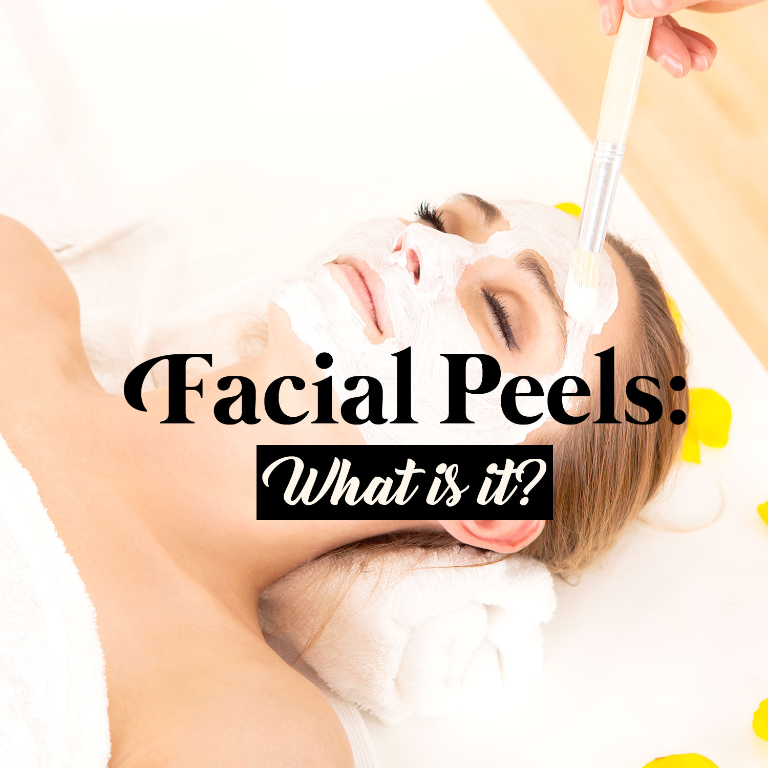 What are Facial Peels