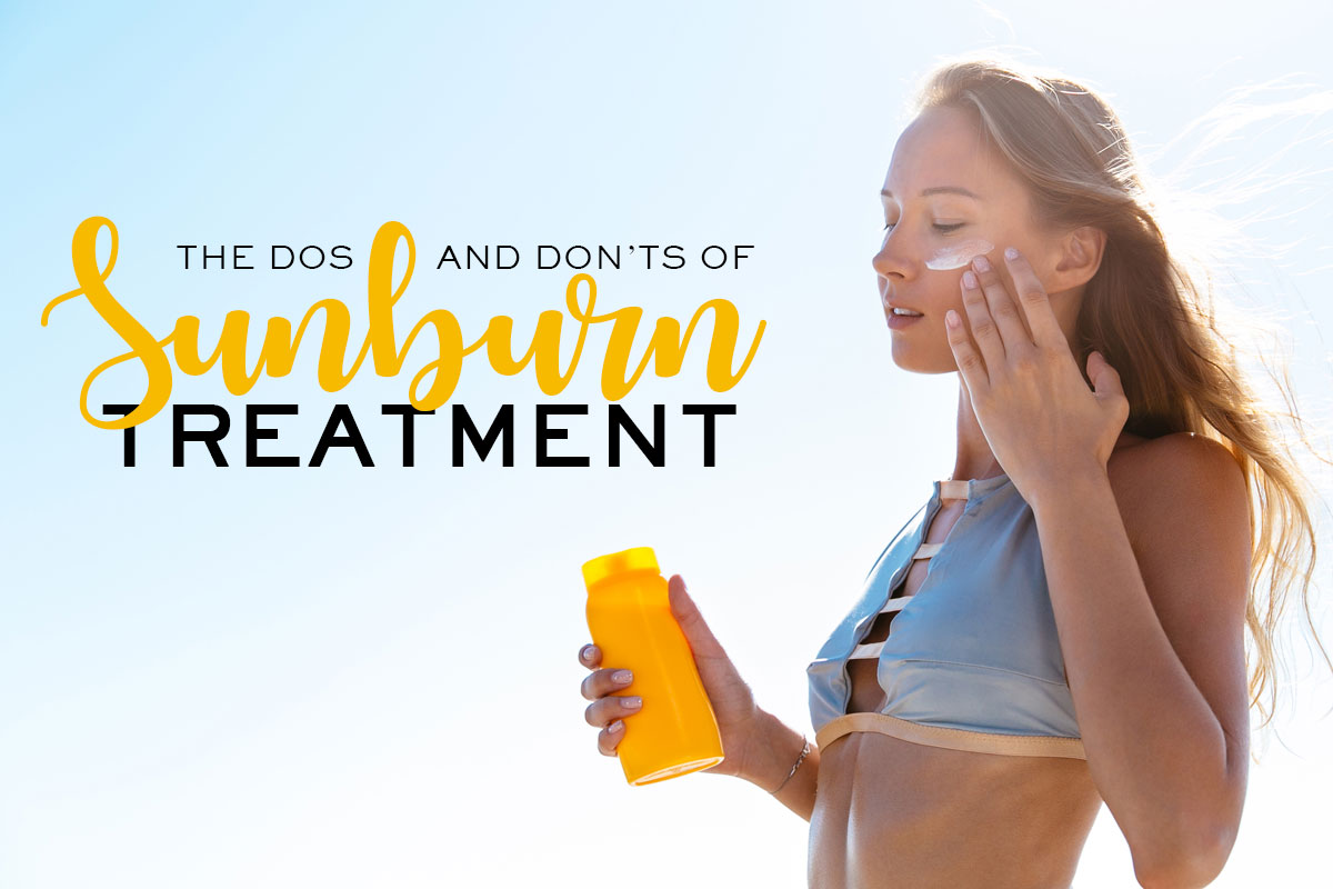 Sunburn Treatment Dos and Don'ts